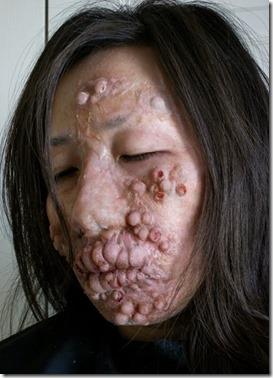 Leprosy-9